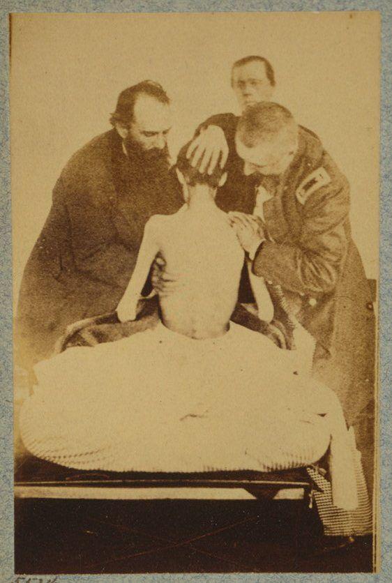 Civil War Doctors Examining a Recently Released Federal Prisoner