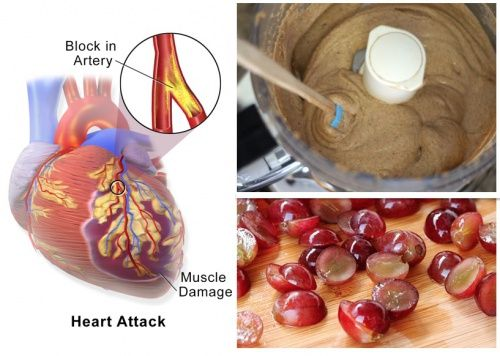 Having had a heart attack, your lifestyle will change. However, there are easy ways to make those changes without terribly upsetting the balance of your life for a little while, at least. No matter what foods you choose to incorporate or delete from your post-heart attack diet, they will help you a lot