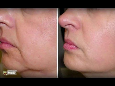 how to lose excess skin on face