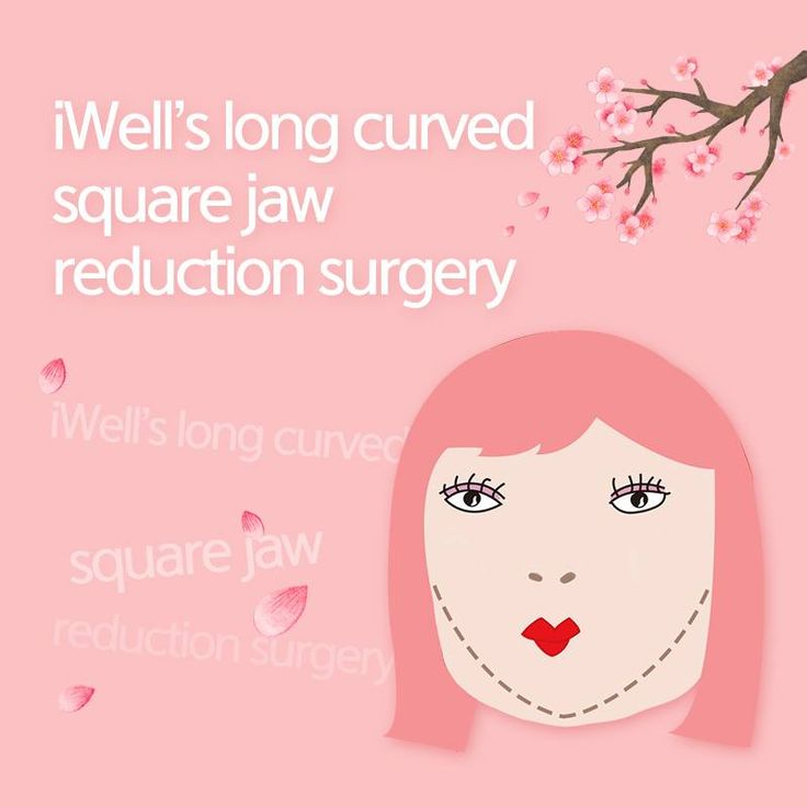 No more angled face!   You can fix your square jaw through iWell's long curved square jaw reduction surgery smile 이모티콘:)   * V-line to the tip of the chin!  * No worries about secondary angles through iWell's long curved square jaw reduction surgery  * Excellent front effect through iWell's long curved square jaw reduction surgery  ♥Looking for facial contouring surgeries?   iWell is the answer..   Tel: (+82) 2-542-2017  Email: iwellps@naver.com  Webstie: http://eng.iwellps.com/