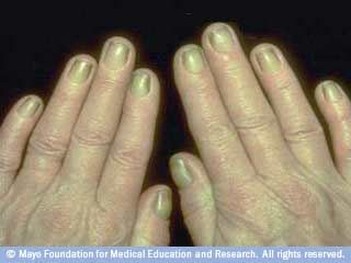 Fingernail problems not to ignore-Yellow Nails-Yellow nail syndrome is often a sign of respiratory disease, such as chronic bronchitis. Yellow nail syndrome can also be related to swelling of the hands (lymphedema).