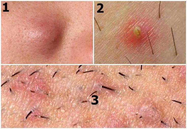 Natural Remedy For Ingrown Hair Scars