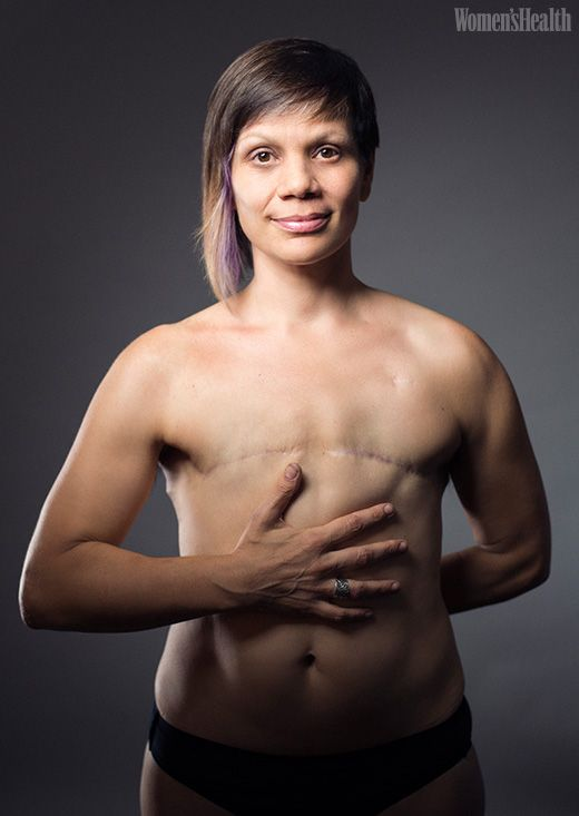 See Women Show The Reality Of Their Mastectomies In -3343