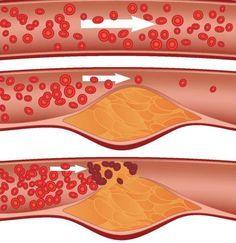 7 modi per pulire le arterie naturalmente