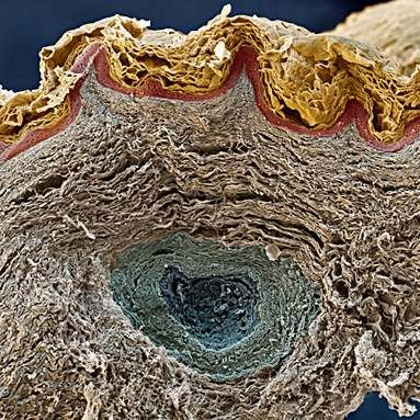 A section through human skin. The skin layers, from top to bottom, are the stratum corneum, composed of flattened, dead skin cells that form the surface of the skin. The dead cells from this layer are continuously being shed and replaced by cells from the living epidermal layer below (red). The lowest layer seen here is the dermis. In the middle, a sweat gland can be seen.: Skin Layered, Epiderm Layered, Dead Cell, Human Cell, Human Skin, Lowest Layered, Human Body, Skin Cell, Dead Skin