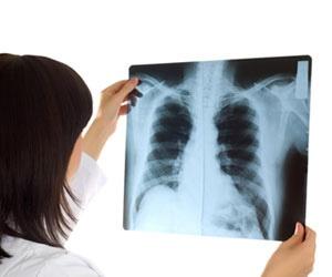 X-Ray Technician Schools