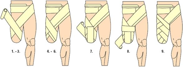 Diagram to wrap bandages for Above Knee Amputation