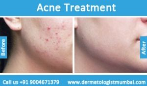 Acne Treatment in Mumbai By Dr. #Rinky #Kapoor-  http://dermatologistmumbai.com/skin/acne-pimple-treatment.html