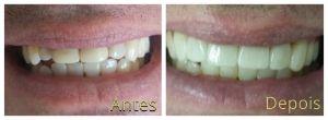 Lentes de Contato DENTAL - Clínica Odontológica em BH