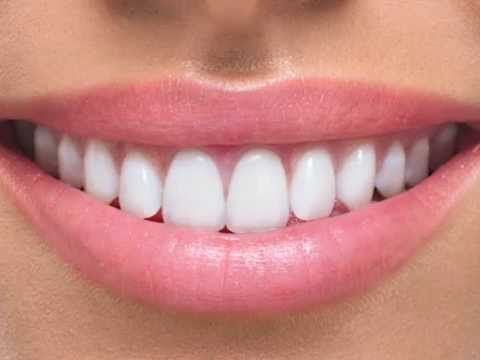 For A Straighter Smile - Invisalign Braces