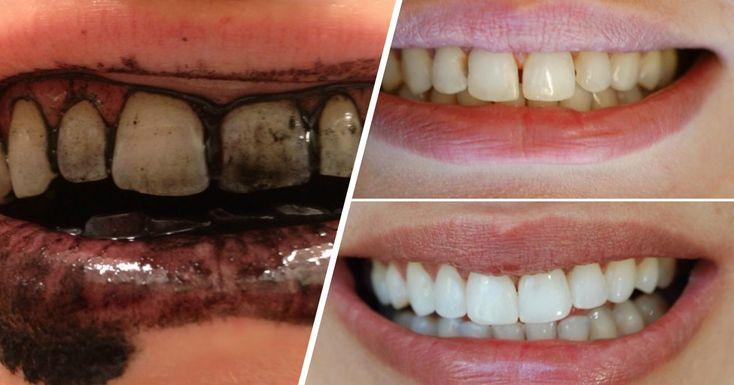 Jak zrobić czarną pastę do zębów – przepis czarna pasta do zębów