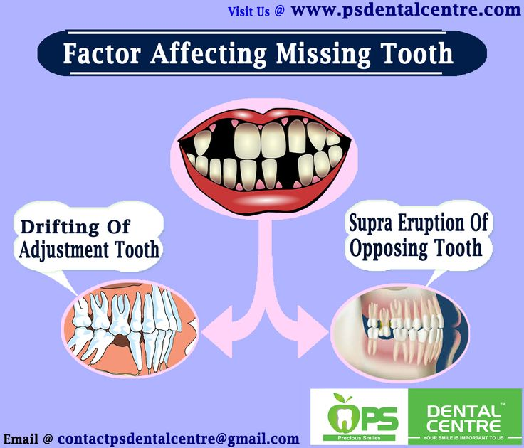 Factor Affecting Missing Tooth Contact Us :- http://www.psdentalcentre.com/dental-centre/best-dental-hospital-in-chennai