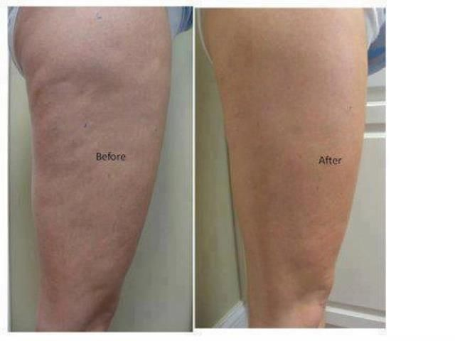 Look at this before and after picture! She used the It ...