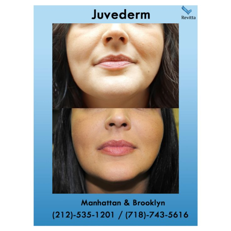 #Juvederm instantly smoothes away all of your #wrinkles. #Rejuvenate #skin with #DermalFillers.