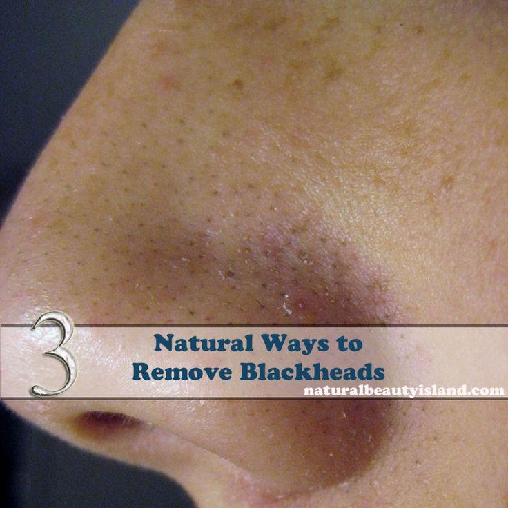Natural Ways to Remove Blackheads | Natural Beauty Island