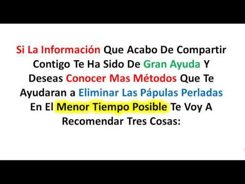 Como Remover Papulas Perladas Revision https://www.youtube.com/watch?v=ZyJcC865RdI