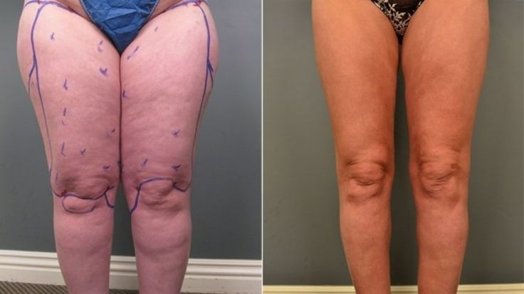 Jasna Turnic's legs before (left) and after (right) getting liposuction to treat her lipedema.
