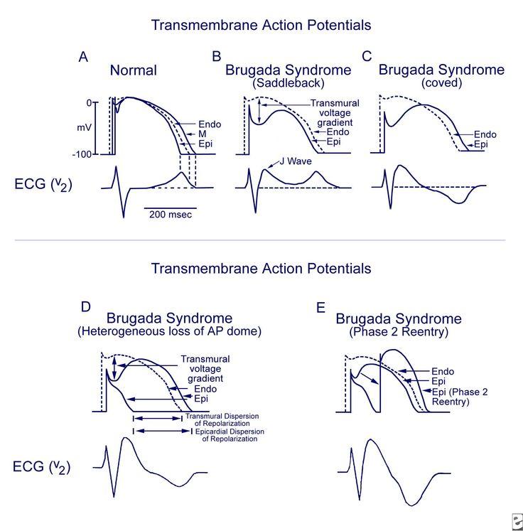 Brugada Syndrome: Practice Essentials, Background ...