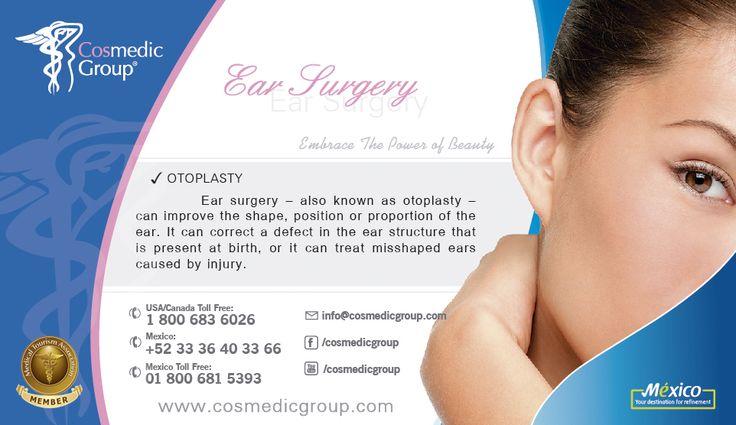 Ear Plastic Surgery, Otoplasty
