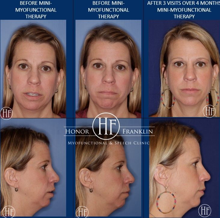 Adults Can Benefit From Orofacial Myofunctional Therapy Too Look