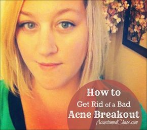 How to Get Rid of a Bad Acne Breakout