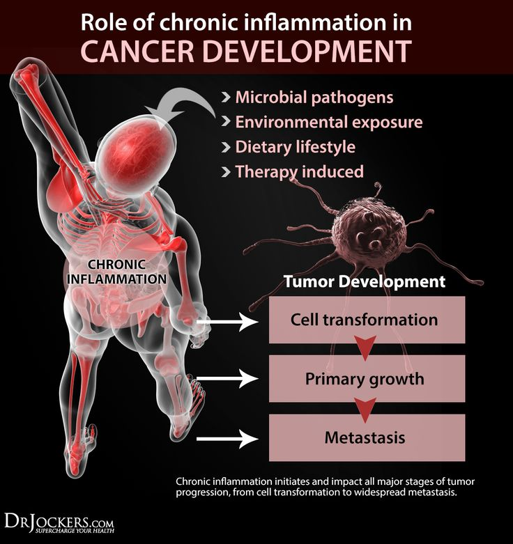 How Does Someone Develop Cancer? - DrJockers.com