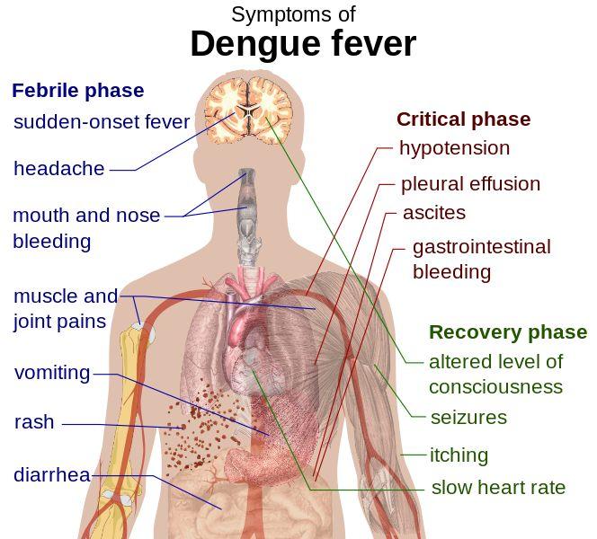 How To Get Rid Of Dengue Fever #DengueFever #SymptomsofDengue #HomeRemediesforDengue