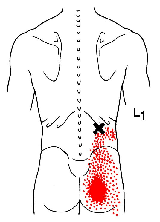 Iliocostalis Lumborum | The Trigger Point & Referred Pain Guide