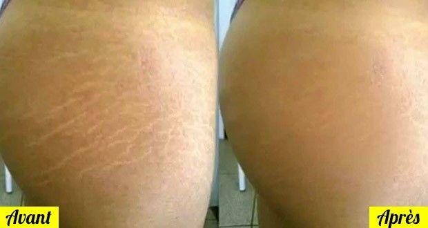 La peau est composée d'élastine, une substance considérée comme un tissu doux et élastique mais qui a aussi ses propres limites. Certains facteurs tels que
