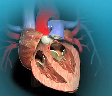 Learn more about aortic valve replacement by watching this animation.