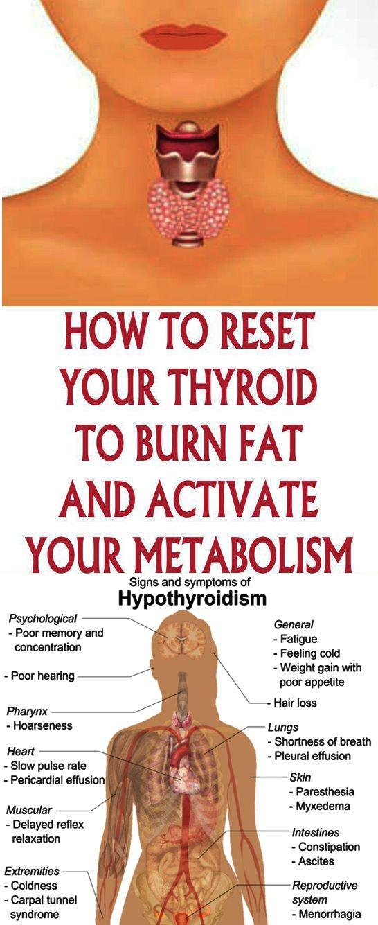 An Underactive Thyroid Gland Hypothyroidism Is Where Your Thyroid