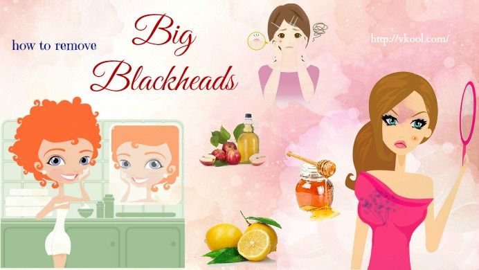 How to remove big blackheads naturally and fast? Here are top 9 methods for you.