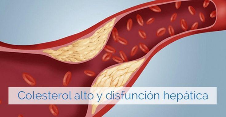 Síntomas que nos alertan de colesterol alto y mal funcionamiento del hígado