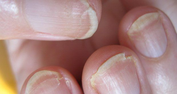 Remèdes pour empêcher les ongles de se dédoubler, ongles qui se dédoublent, remèdes pour ongles fragilisés, remèdes naturels pour ongles
