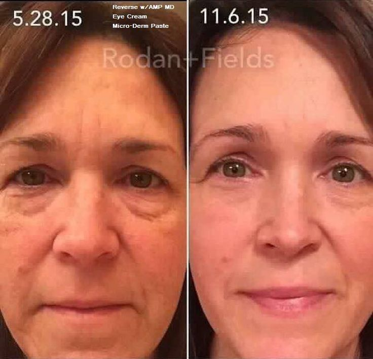 Ready to REVERSE what age and sun has done to your skin? Get started on your REVERSE regimen today...add in the patented AMP MD roller and see just how much better your skin looks and feels!! Call or email me today shannonDx2@gmail.com 410-746-4298