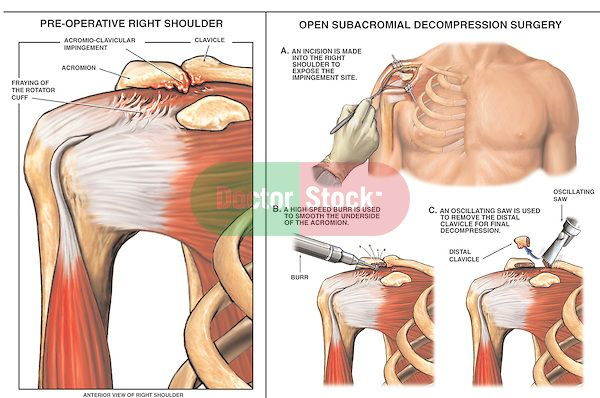 Shoulder Impingement Surgery | Right Shoulder Impingement Syndrome with Decompression Surgery.