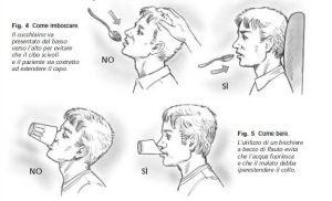 Il termine disfagia deriva dal greco antico e indica una difficoltà a deglutire. Tale difficoltà può manifestarsi per i cibi liquidi, per i solidi o per entrambi. La disfagia può essere associata a numerose patologie, soprattutto di tipo vascolare (come ictus, vasculopatia cerebrale dell'anziano), neurologiche (come malattia di Parkinson, SLA, Sclerosi Multipla) o neoplasie del […]
