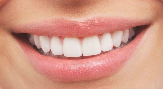 Így fehérítsd a fogaidat házilag!