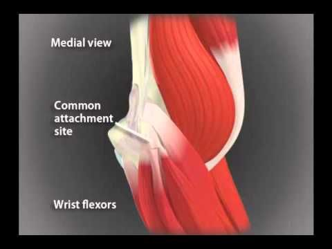 Tennis Elbow Test.....I think this is my problem!