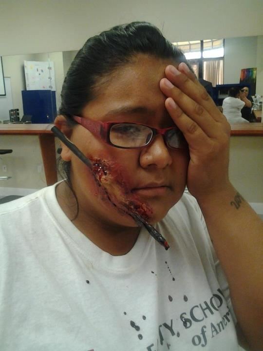 that will teach her! #accident #face #blood #bruise # ...