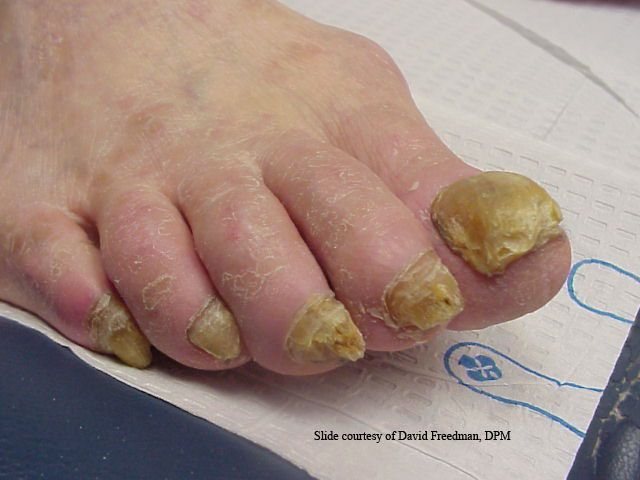 90 best Nail Fungus Treatment images on Pinterest