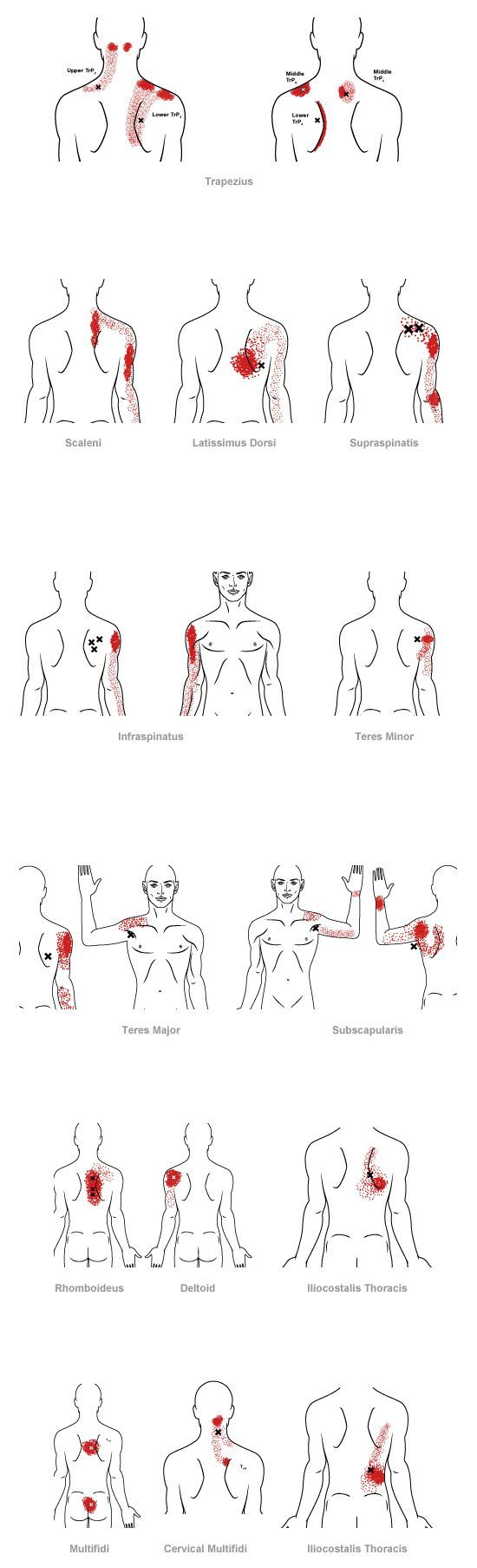 trigger point referral pain pattern for the mid back