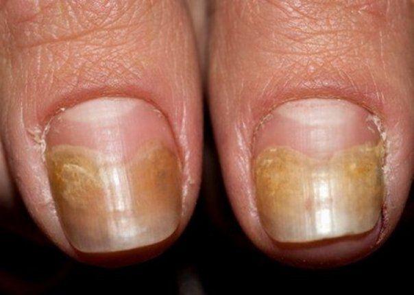 Ca urmare a umiditatii, mucegaiului si bacteriilor,  infectiile fungice  pot aparea la  picioare  si la  unghii , de cele mai multe ori fiind neplacute, dureroase si inestetice. Prima etapa de infectiei fungice este aparitia unor  pete albe  sau...