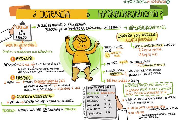 Diferencias entre Ictericia e Hiperbilirrubinemia. Fuente: Neonatología en esquemas