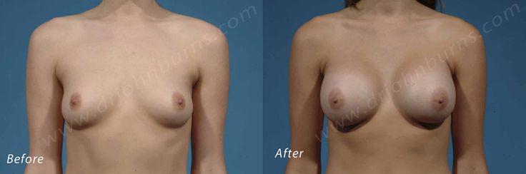 https://flic.kr/p/WcB9Re | Breast Augmentation | Breast Augmentation by Dr. John L. Burns, MD Board Certified Plastic Surgeon Dallas Plastic Surgery Institute