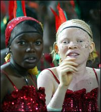 albino-girl-africa--Why is it that these albinos are attacked in East Africa? In sub-Saharan Africa, people with this hereditary condition are often thought of as having supernatural powers, which makes them a target for mutilations and killings.