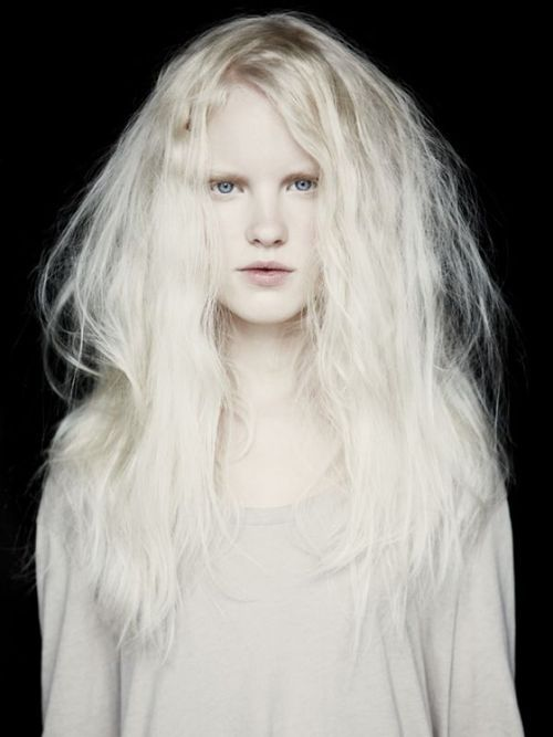 An albino child has the same issues as a child of any color. They want to be loved...