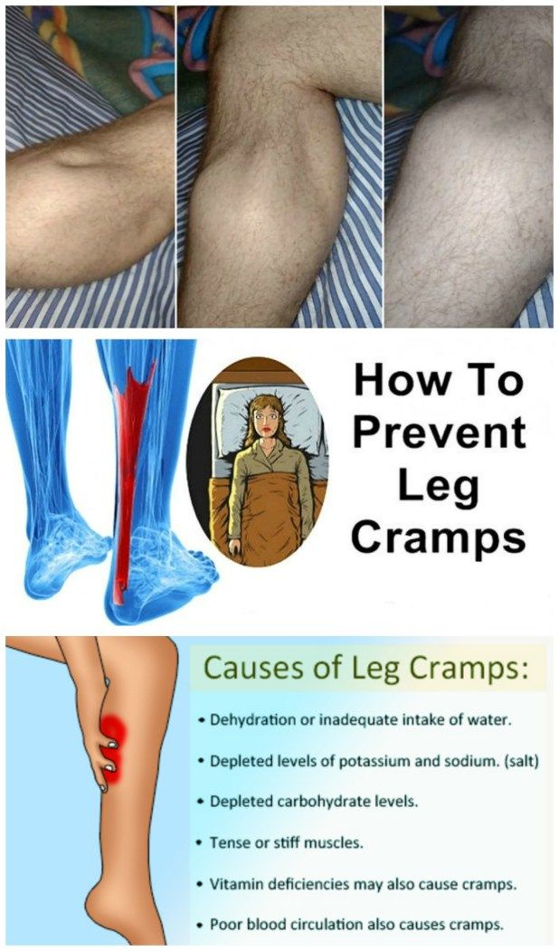 Leg cramps also have another name, Charley horse. They are spasms that make you wake up at night and can also happen in the daytime due to workouts like cycling or running.