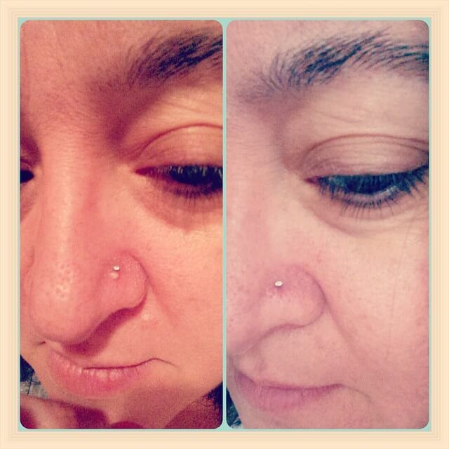 nose piercing bump before and after | Nose piercing bump, Piercing bump, Nose  piercing