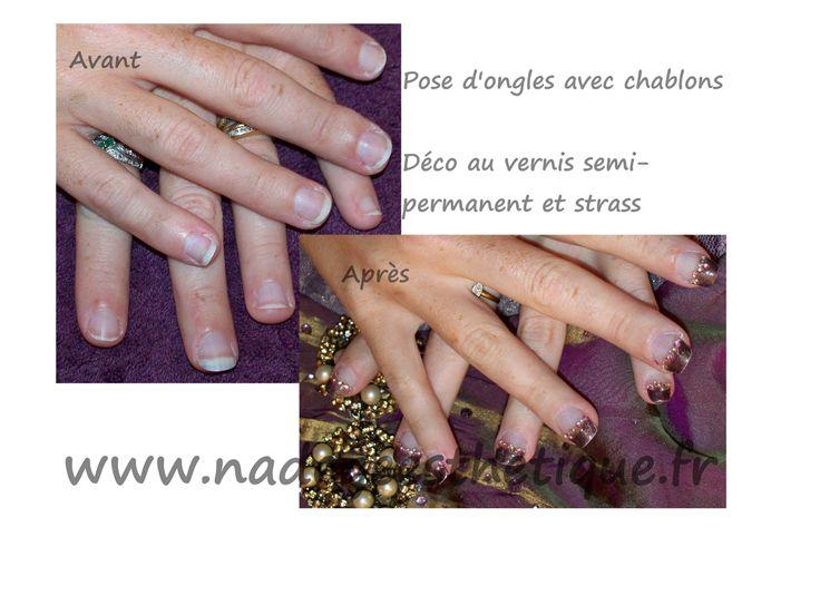 Avant/Après Pose de faux ongles au gel UV sur chablons. Déco french chocolat